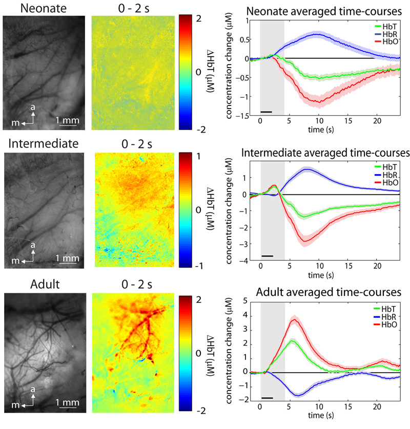 Left gray-scale MS-OISI images of cortical surface; middle: difference maps showing changes in hemoglobin concentrations. Right: hemoglobin levels over time.